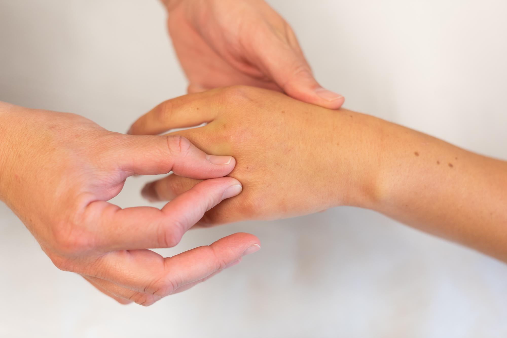 Reumatoïde artritis - Bravis ziekenhuis